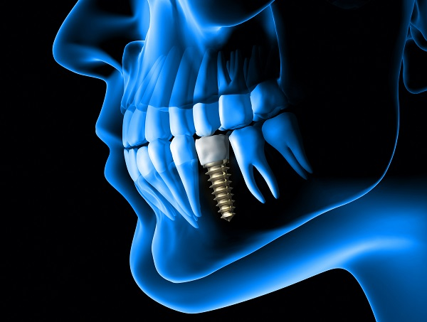 Why You Should Choose Dental Implants To Replace Missing Teeth